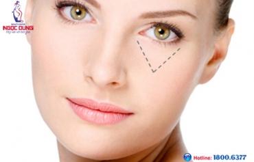 Trị thâm quầng mắt an toàn hiệu quả với công nghệ Ipac Laser