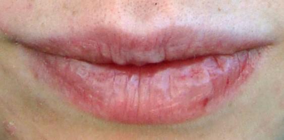 son môi dỏm gây hại môi