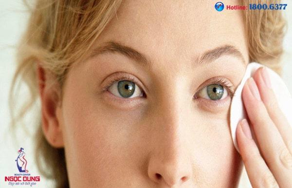 Thâm quầng mắt là biểu hiện của bệnh tim