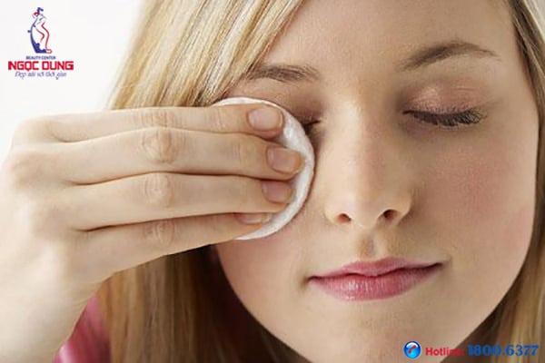 Nguyên nhân thâm quầng mắt chủ yếu