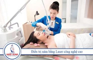 Laser Pastelle: Quét sạch nám, tàn nhang – Sáng hồng mặt mộc