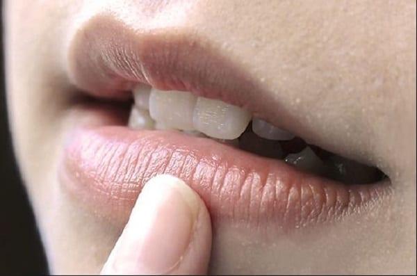 Thâm môi di truyền