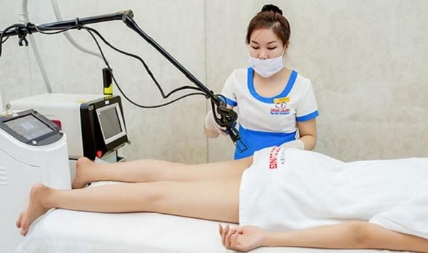 Trị thâm mông bằng laser