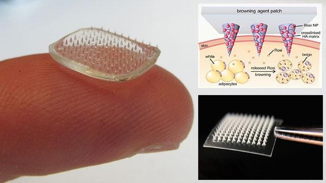 Miếng dán nano giảm béo với đầu kim siêu nhỏ