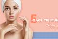 5 Cách trị mụn hiệu quả cao, chẳng lo thâm sẹo