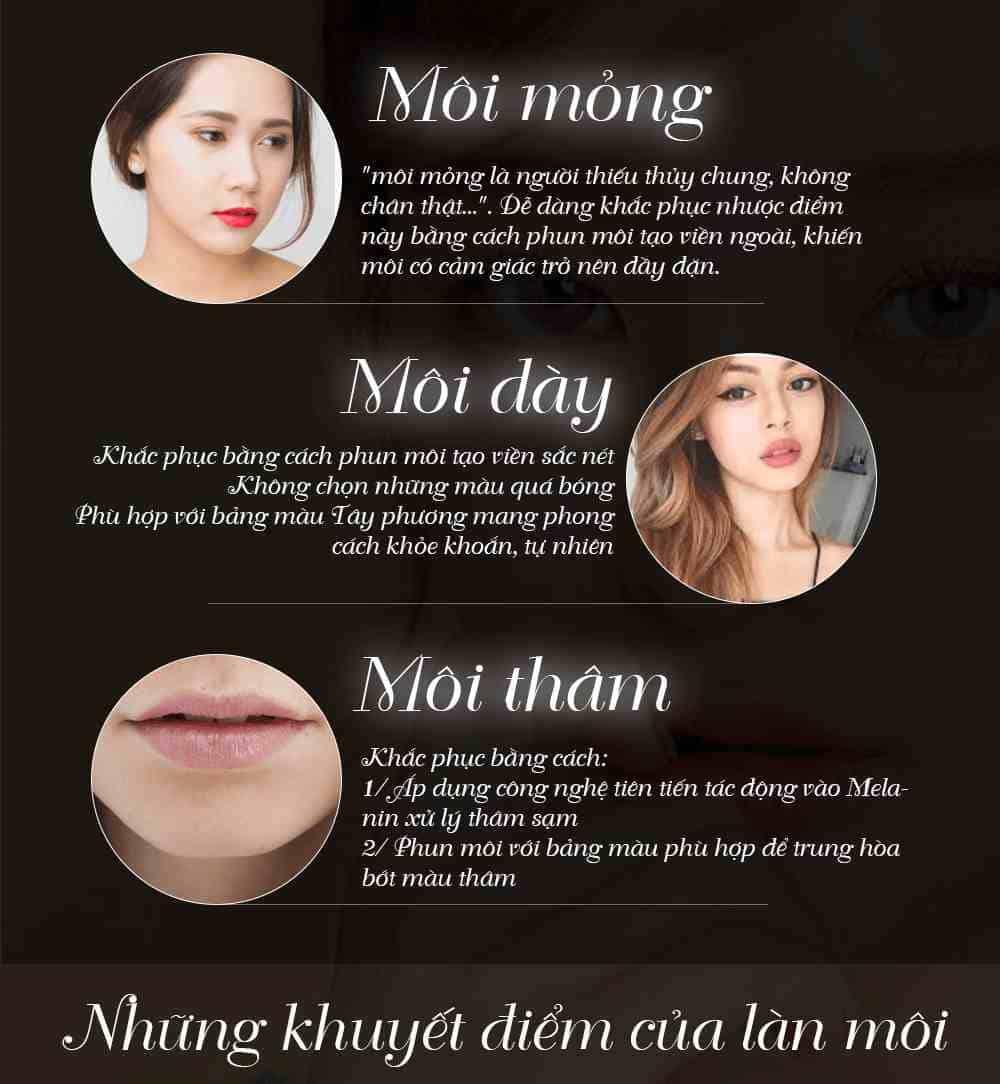 những khuyết điểm của bờ môi