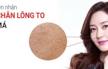 Lỗ chân lông to ở mũi và má khắc phục thế nào