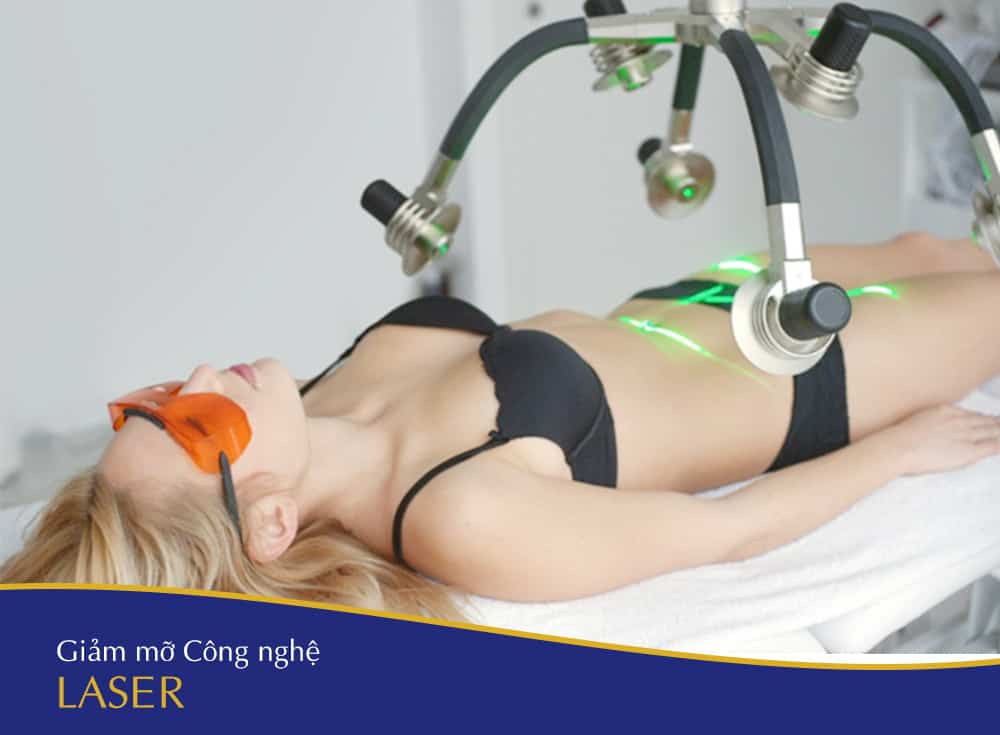 giam mo cong nghe laser cavitation