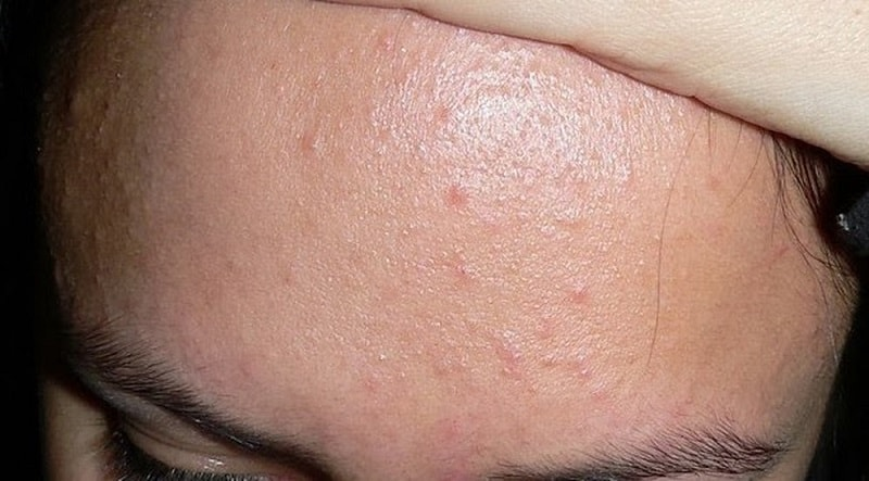 mụn ẩn dưới da