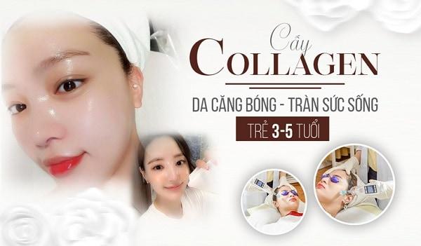 cấy collagen phù hợp với ai