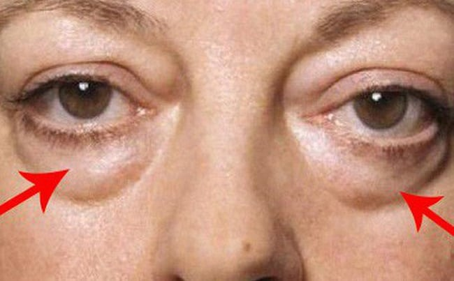 Mỡ bọng mắt