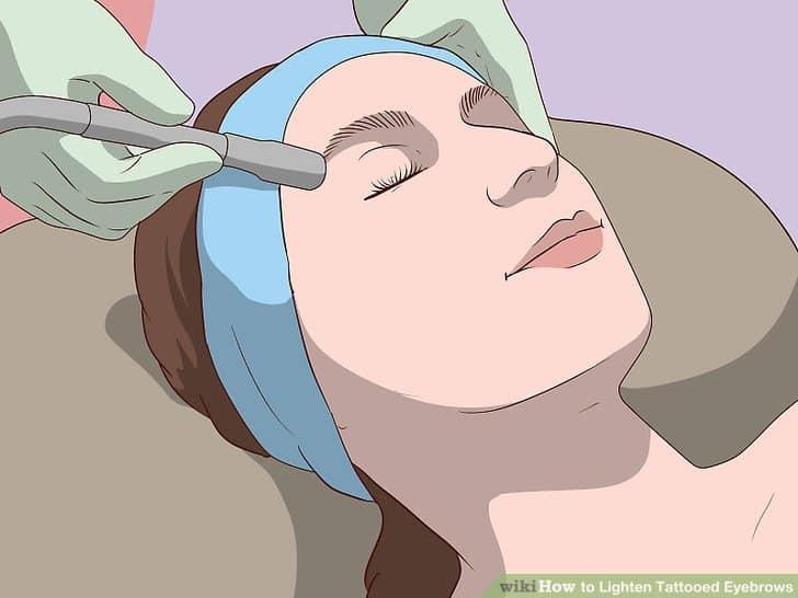 Lên lịch các phiên mài da vi điểm để quá trình mờ dần